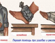 Народные средства от ушибов и растяжений: самые простые и действенные средства
