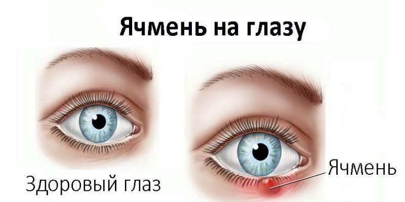 Если ячмень на глазу большой что делать